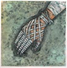 Bandaged Hand II